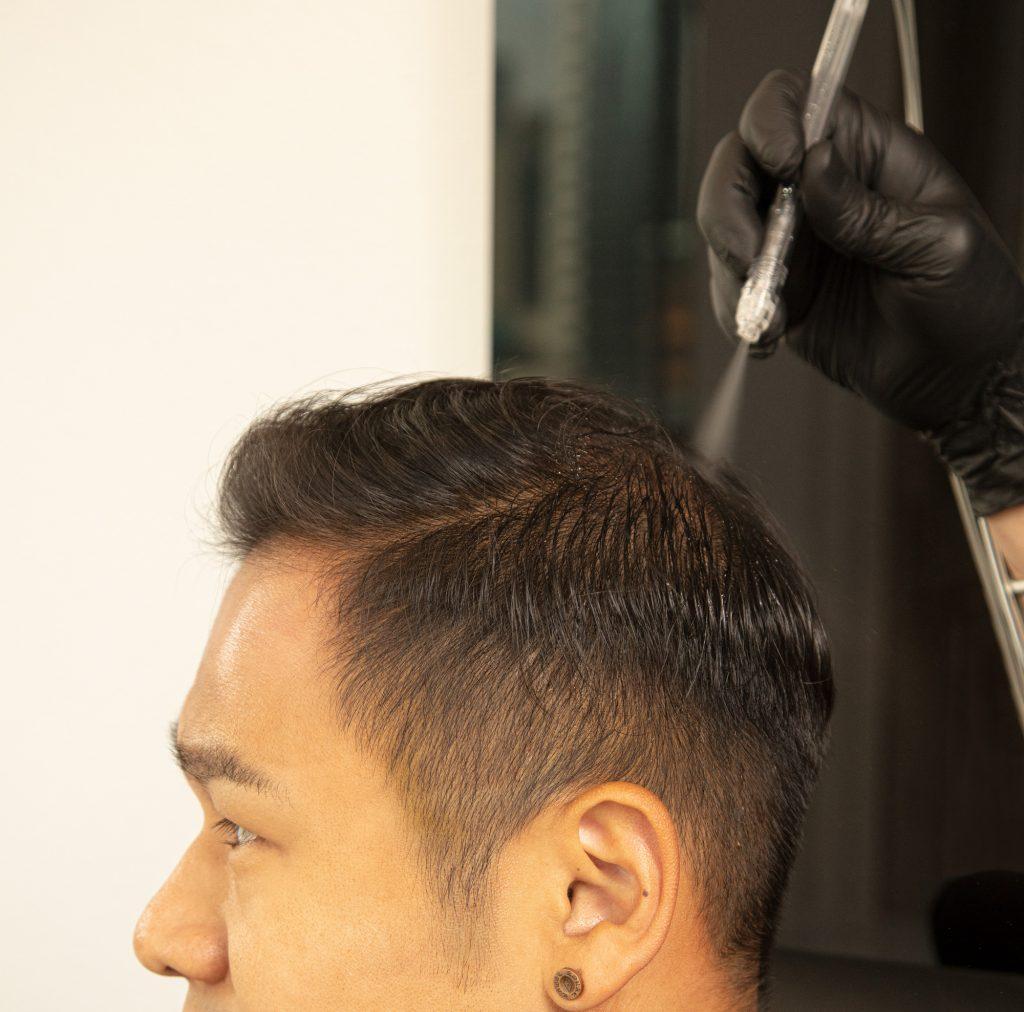 Jet-Steam 育髮療程 2